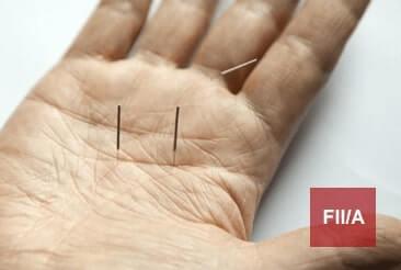 Akupunktura – grupa FIIA 2019-2022