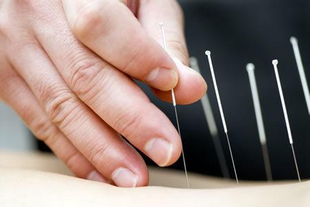 Rekrutacja Akupunktura  – grupa EII/A 2018/2021